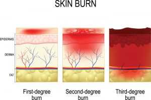 Burn Injury Complications: Infection